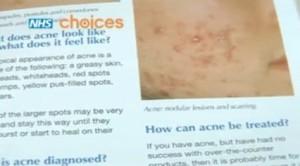 acne 300x166 Acne