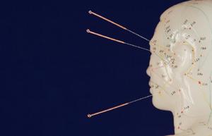 Acupuncture Health Videos